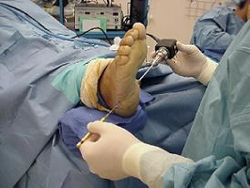 plans painful practical on elegant surgery plantar is planters fasciitis planter guidance
